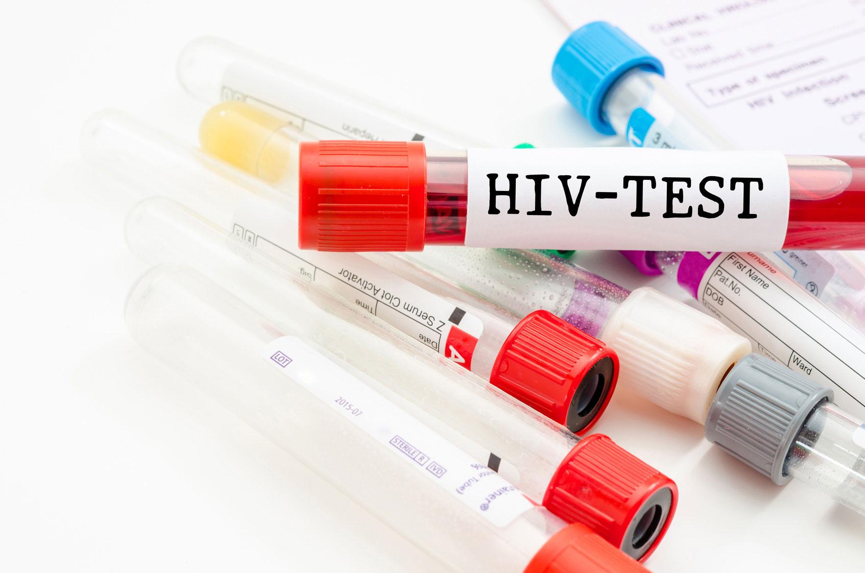 photo-hiv-test